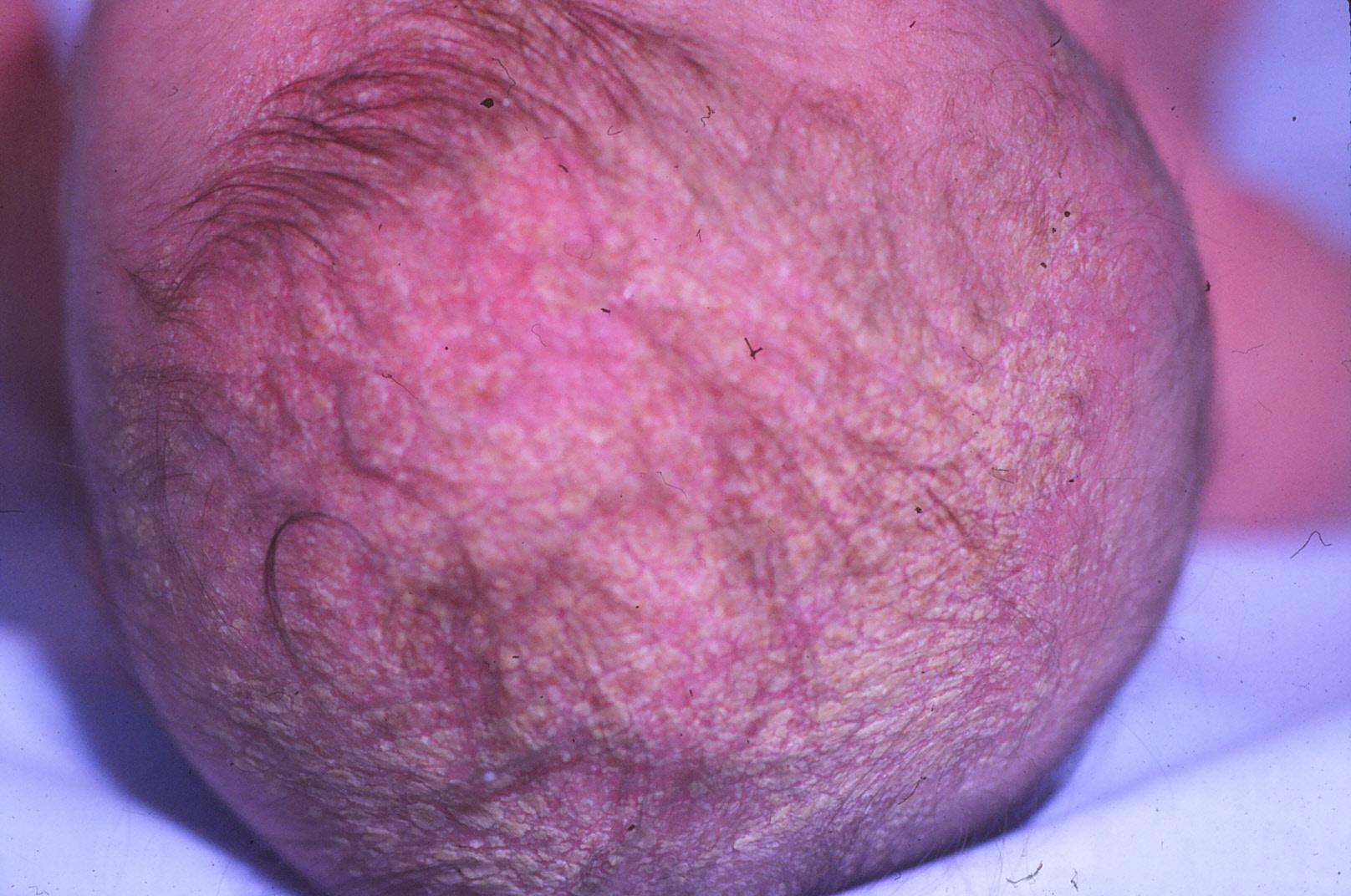 De que se separa la psoriasis